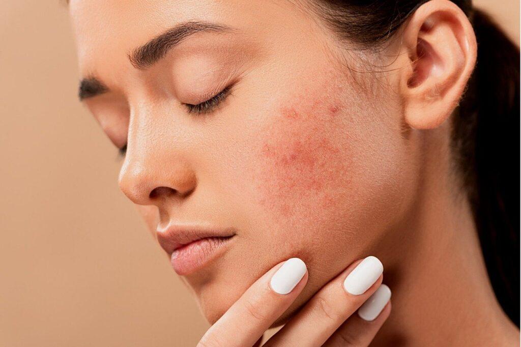 iritasi kulit