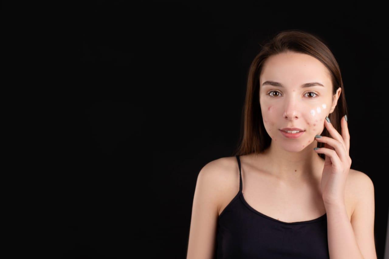 skincare untuk kulit beruntusan (6)